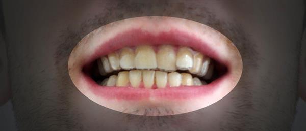 njit-student-3dprinted-teeth-aligners-rare-success-diy-dentistry-10